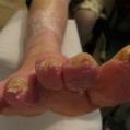 Verwaarloosde voet na 1e behandeling