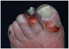 Diabetische-voet