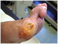 Diabetische-voeten-foto,s