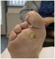 Reuma-voet